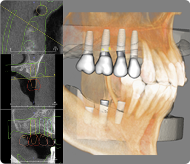 CBCT Implant Placement